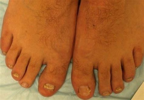 toe fungus laser treatment mn picture 3
