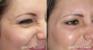 aging botox treatment picture 15