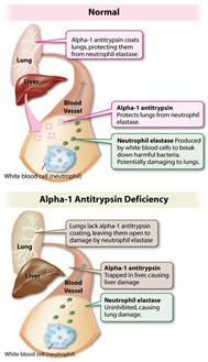 alpha 1 tripton liver disease picture 13