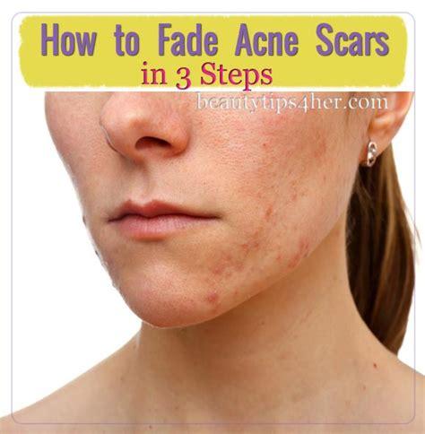 fading acne dark spots picture 10