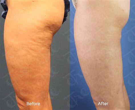 cellulite and laser insute picture 2