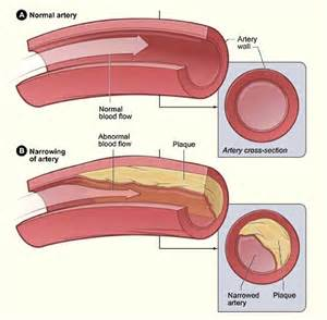 erectile dysfunction and aortic heart valve picture 10