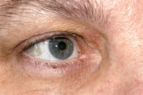 xantholasma eye cream hamdard picture 15
