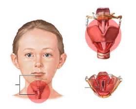 mga symptomas ng cancer picture 11