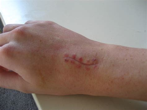 white or red thyme for ganglion cyst picture 12