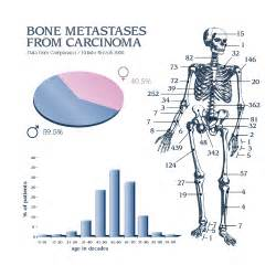 prostate cancer metastisis picture 2