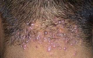 acne on the back of your head picture 3