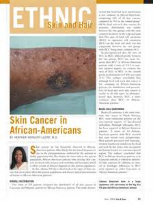 american skin cancer picture 2