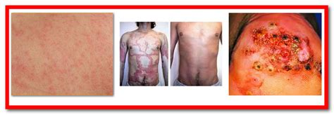 pictures of skin diseases on humans picture 4
