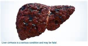liver with cirrhosis picture 2