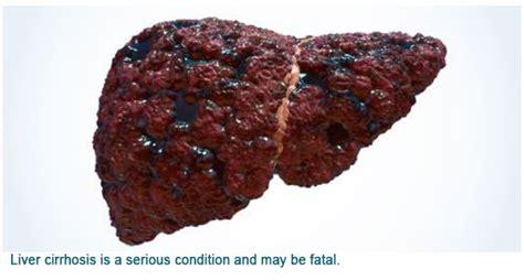 advanced portal cirrhosis liver picture 10