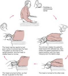 can joint pain casue dizziness picture 6