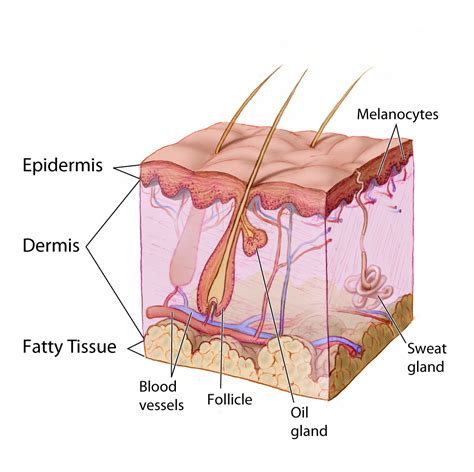 causes of cystic acne picture 14