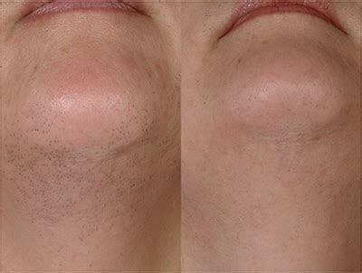 denver laser hair removal picture 1