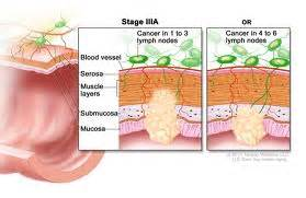 survival rate colon cancer stage 3 picture 2