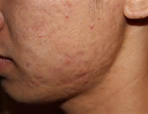 pictures of acne scars picture 2