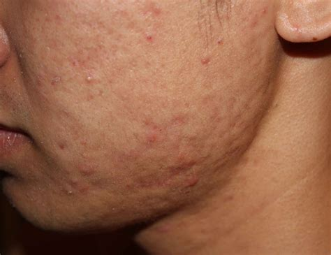 Acne scarring picture 5