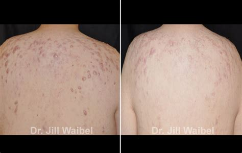 acne laser florida picture 2