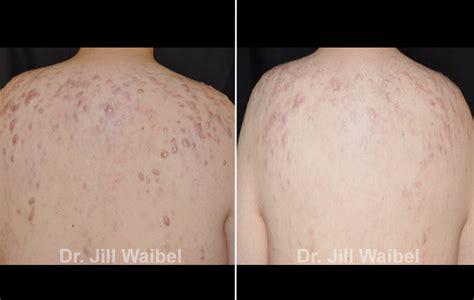 acne treatment in miami fl picture 3