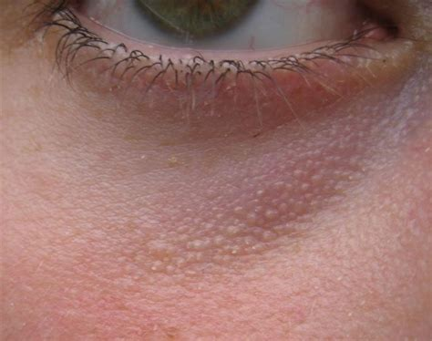 collagen on yeast infection picture 9