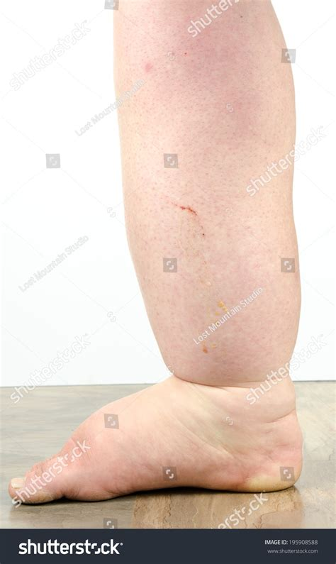 feet skin picture 1