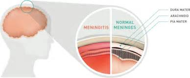 orgeno oil for menigituds picture 18