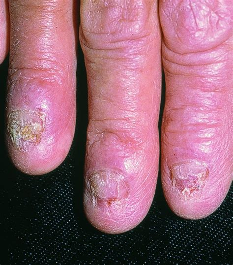 what vitamin help fungus under your nails picture 7