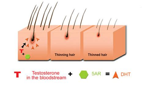 testosterone blocker before and after picture 5
