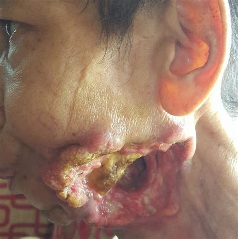 yellow pus showing on lips picture 18