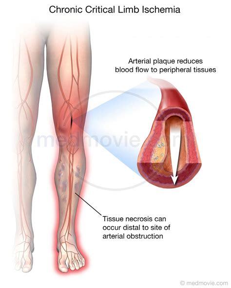 bacterial menichitis symptoms picture 1