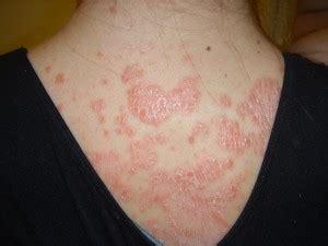 auto immune disease of skin picture 6