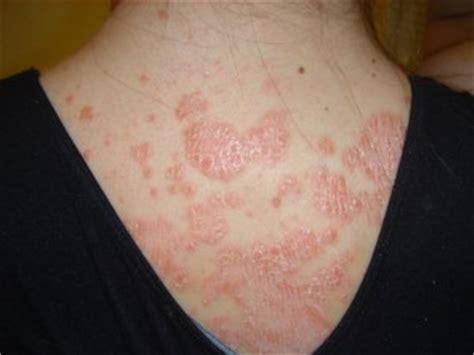 auto immune disease of skin picture 5