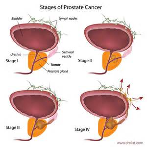 Symptoms of end stage prostate cancer spread to picture 14