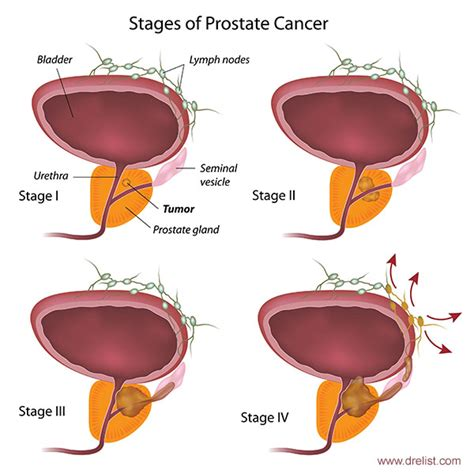 What is prostate cancer picture 11