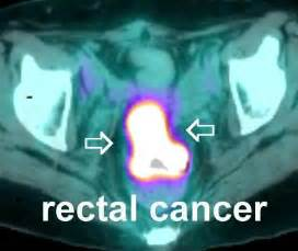 colon cancer and pet scan picture 2