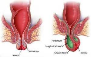 hemorrhoid symptoms picture 6