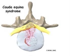 cauda equina bladder picture 3