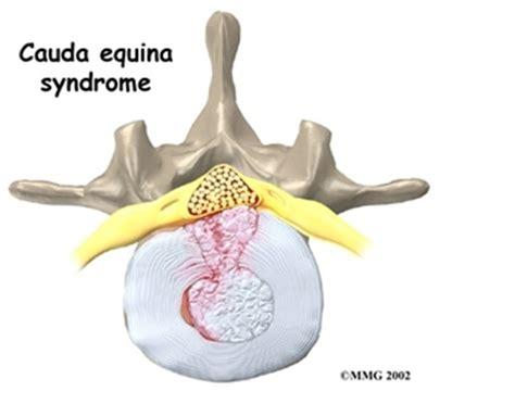 cauda equina bladder picture 5