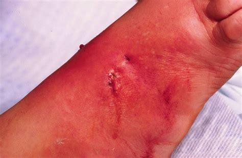 cat bite skin infections in humans picture 2