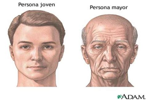 Loss of muscle in elderly picture 9