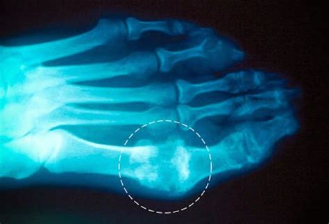 throbbing big toe joint pain picture 2