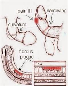 erection pain picture 2