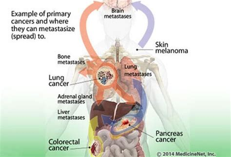 bone cancer spread to the liver + prognosis picture 6
