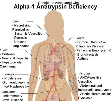 acute liver failure life expectancy picture 6