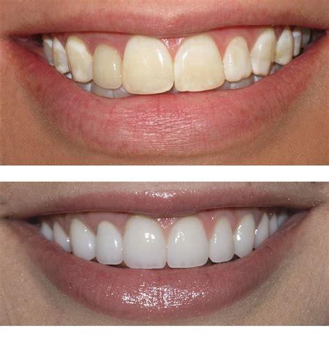 dentist porcelain teeth picture 3