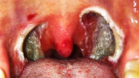 yeast infection on tonsils picture 10