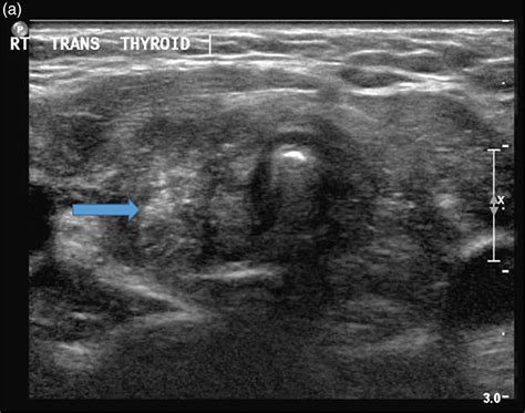 what is heterogeneous echo pattern of thyroid no picture 14