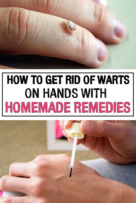 how to get rid of warts picture 2
