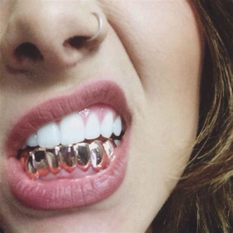 finance me gold teeth picture 13