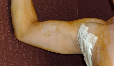 arm lipo muscle pain picture 5